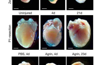 Senescent Cells Bring Life to Injured Hearts